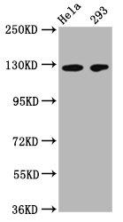 Western Blotting(WB) 2- CD146 Monoclonal Antibody