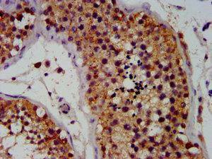 Immunohistochemistry(IHC) 2- OCT4 Monoclonal Antibody