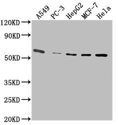 Western Blotting(WB) 1- PD-L1 Monoclonal Antibody