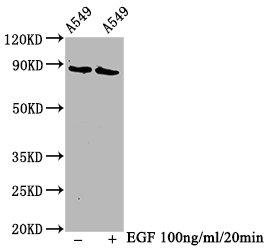 Western Blotting(WB) - Phospho-BRAF (T401) Antibody