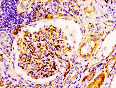 Immunohistochemistry(IHC) 1- CD34 Antibody