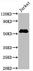 Western Blotting(WB) - CD4 Antibody
