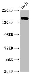 Western Blotting(WB) - CD21 Antibody