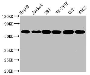 Western Blotting(WB) - CYP19A1 Antibody