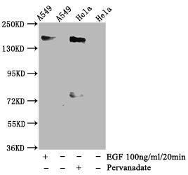 Western Blotting(WB) - Phospho-EGFR (Y1092) Antibody