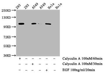 Western Blotting(WB) - Phospho-ERN1 (S724) Antibody