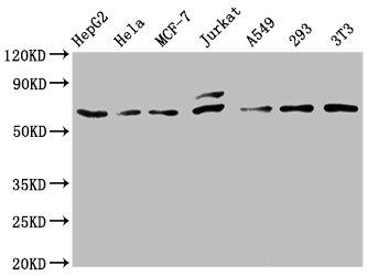 Western Blotting(WB) - FOS Antibody