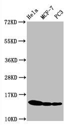 Western Blotting(WB) - Phospho-Histone H3.1(S10)Antibody