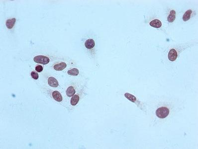 Immunocytochemistry(ICC) 1- Tri-methyl-Histone H4 (K20) Antibody