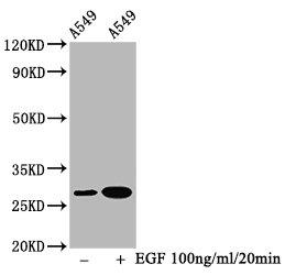 Western Blotting(WB) - Phospho-HSPB1 (S78) Antibody