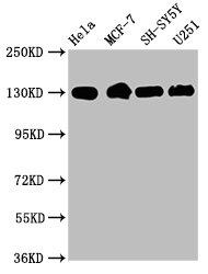 Western Blotting(WB) - ITGB1 Antibody