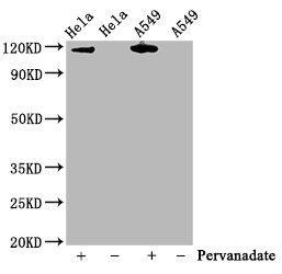 Western Blotting(WB) - Phospho-JAK2 (Y1007 + Y1008) Antibody