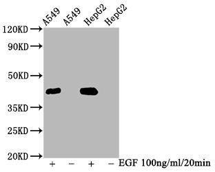 Western Blotting(WB) - Phospho-MAPK3 (T202) + MAPK1 (T185) Antibody
