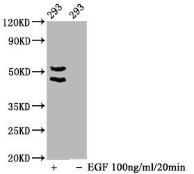 Western Blotting(WB) - Phospho-MAPK8/MAPK9/MAPK10 (T183/T183/T221) Antibody