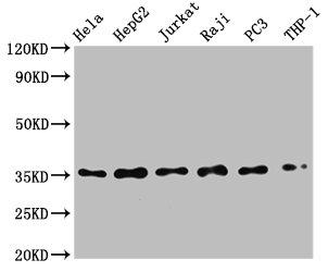 Western Blotting(WB) - NFKBIA Antibody