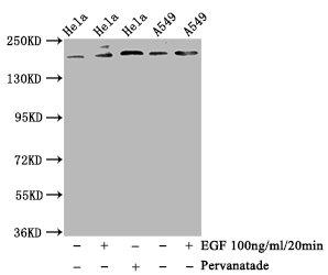 Western Blotting(WB) - Phospho-PDGFRB (Y740) Antibody