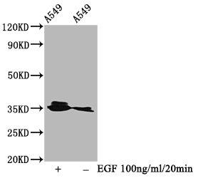 Western Blotting(WB) - Phospho-PPP2CA (Y307) Antibody