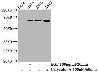 Western Blotting(WB) - Phospho-PRKCA (T638) Antibody