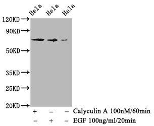 Western Blotting(WB) - Phospho-RAF1 (S259) Antibody