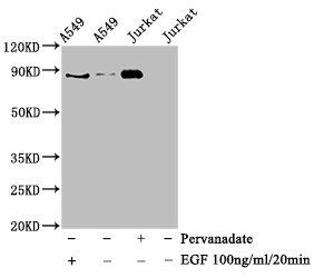 Western Blotting(WB) - Phospho-STAT3 (Tyr705) Antibody