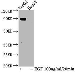 Western Blotting(WB) - Phospho-STAT5A (Y694) Antibody