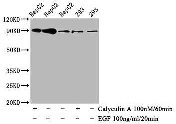 Western Blotting(WB) - Phospho-NFE2L2 (S40) Antibody