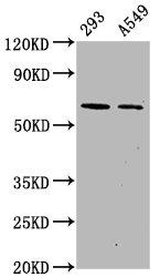 Western Blotting(WB) - Phospho-PRKAA2 (S491) Antibody