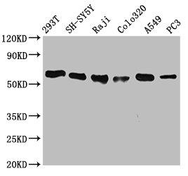 Western Blotting(WB) - FTO Antibody