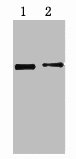 Western Blotting(WB) 1- His-Tag Monoclonal Antibody