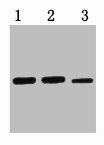 Western Blotting(WB) 1- MBP-Tag Monoclonal Antibody