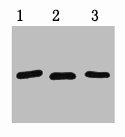 Western Blotting(WB) 1- RFP-Tag Monoclonal Antibody