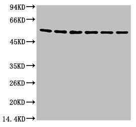 Western Blotting(WB) 1- TUBB3 Monoclonal Antibody