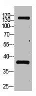 Western Blotting(WB) 1- PTPRC Monoclonal Antibody