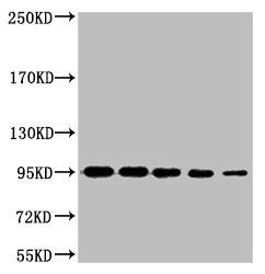 Western Blotting(WB) 1- CTNNB1 Monoclonal Antibody