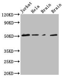 Western Blotting(WB) 1- TUBG1 Monoclonal Antibody