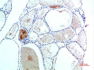 Immunohistochemistry(IHC) 1- TTR Monoclonal Antibody