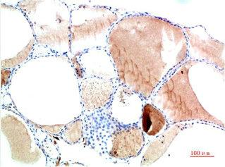 Immunohistochemistry(IHC) 2- TTR Monoclonal Antibody