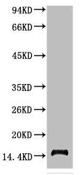 Western Blotting(WB) 1- TTR Monoclonal Antibody