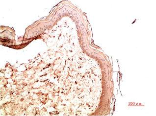 Immunohistochemistry(IHC) 2- COL4A1 Monoclonal Antibody