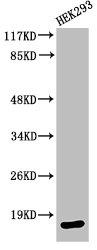 Western Blotting(WB) 1- Cleaved-CASP3 (D175) Antibody