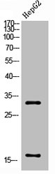 Western Blotting(WB) 2- Cleaved-CASP3 (D175) Antibody