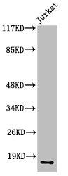 Western Blotting(WB) 1- Cleaved-F7 (R212) Antibody