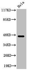 Western Blotting(WB) 1- Cleaved-KLKB1 (R390) Antibody