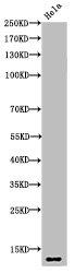 Western Blotting(WB) 2- Acetyl-Histone H4 (K5) Antibody
