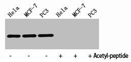 Western Blotting(WB) 2- Acetyl-Histone H4 (K8) Antibody