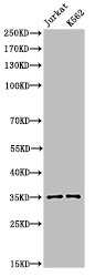 Western Blotting(WB) 2- Acetyl-APEX1 (K7) Antibody