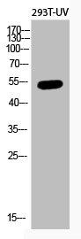 Western Blotting(WB) 1- Acetyl-TP53 (K382) Antibody