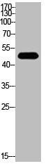 Western Blotting(WB) 2- Acetyl-TP53 (K382) Antibody