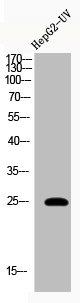 Western Blotting(WB) 1- Acetyl-HMGB1 (K12) Antibody