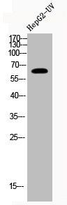 Western Blotting(WB) 1- Acetyl-RELA (K221) Antibody